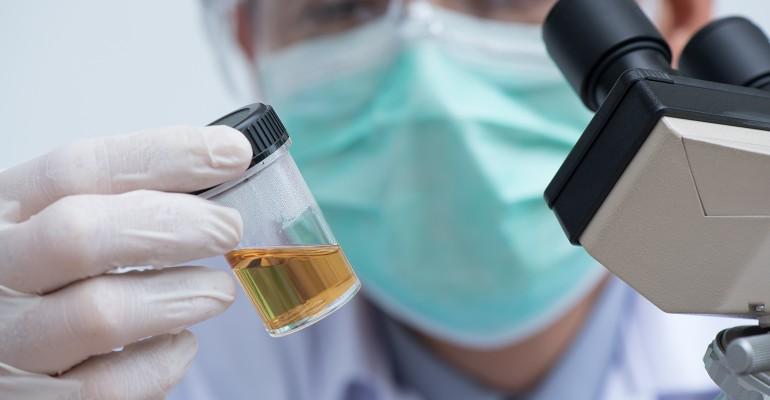 CBD sport drug testing | Natural Products INSIDER