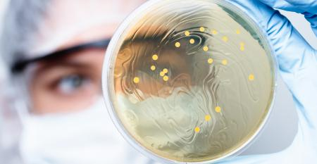Growing pains from the probiotic formerly known as Lactobacillus.jpg